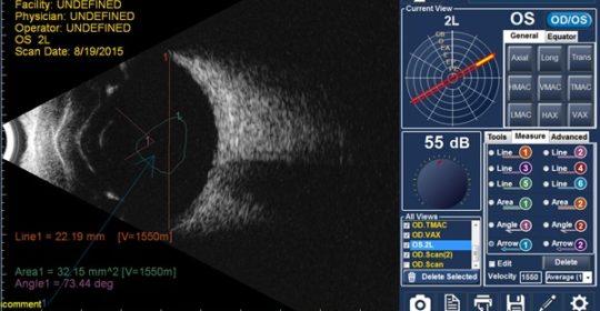 Oftalmologia: al Centro Abax arriva l'Ecografia Oculare