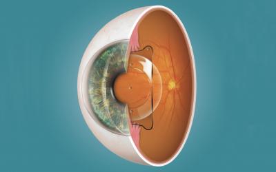 Chirurgia laser per miopia, astigmatismo e ipermetropia: come fare chiarezza tra le alternative?